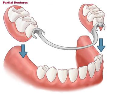 dentures02